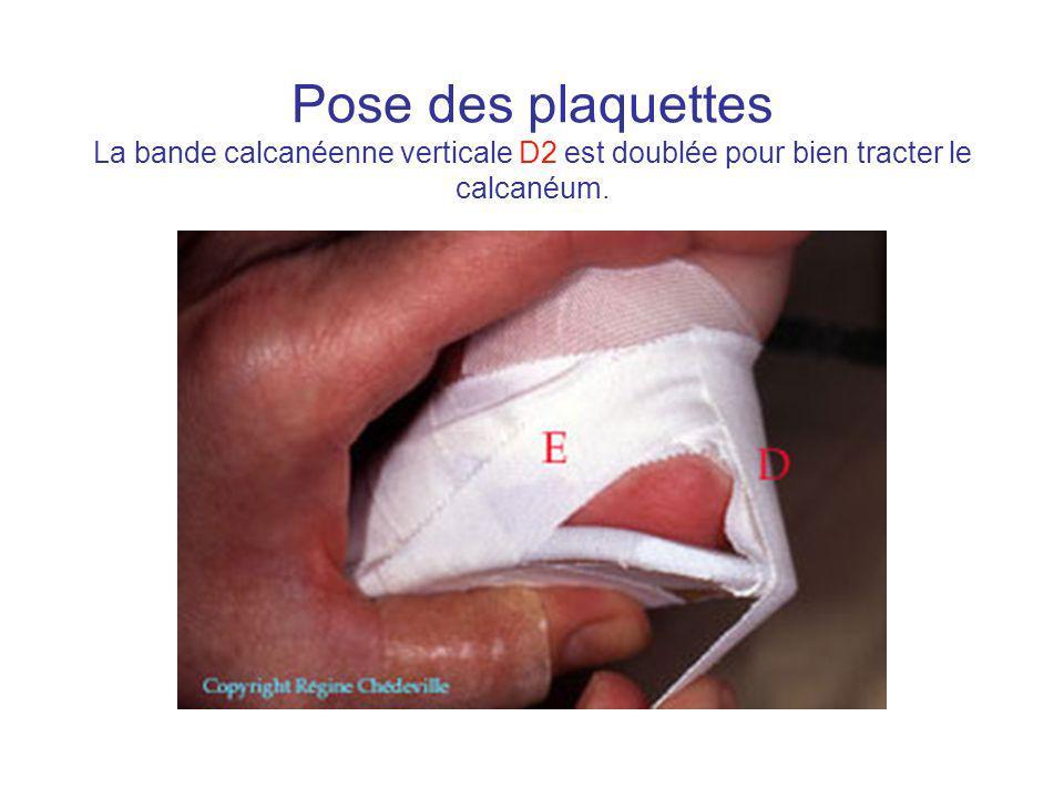 Pose des plaquettes La bande calcanéenne verticale D2 est doublée pour bien tracter le calcanéum.