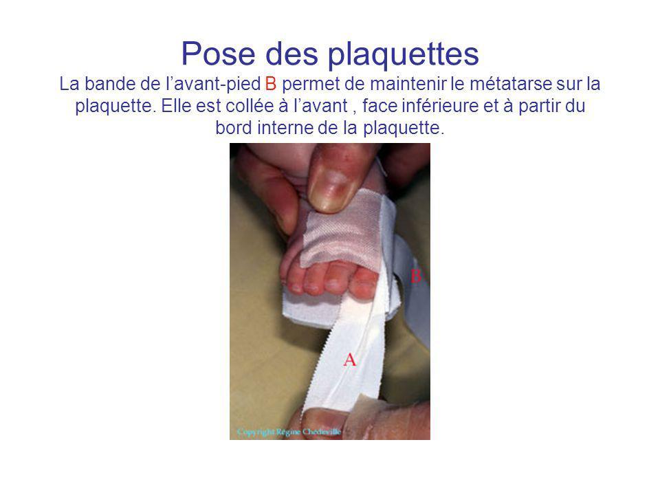 Pose des plaquettes La bande de l'avant-pied B permet de maintenir le métatarse sur la plaquette.