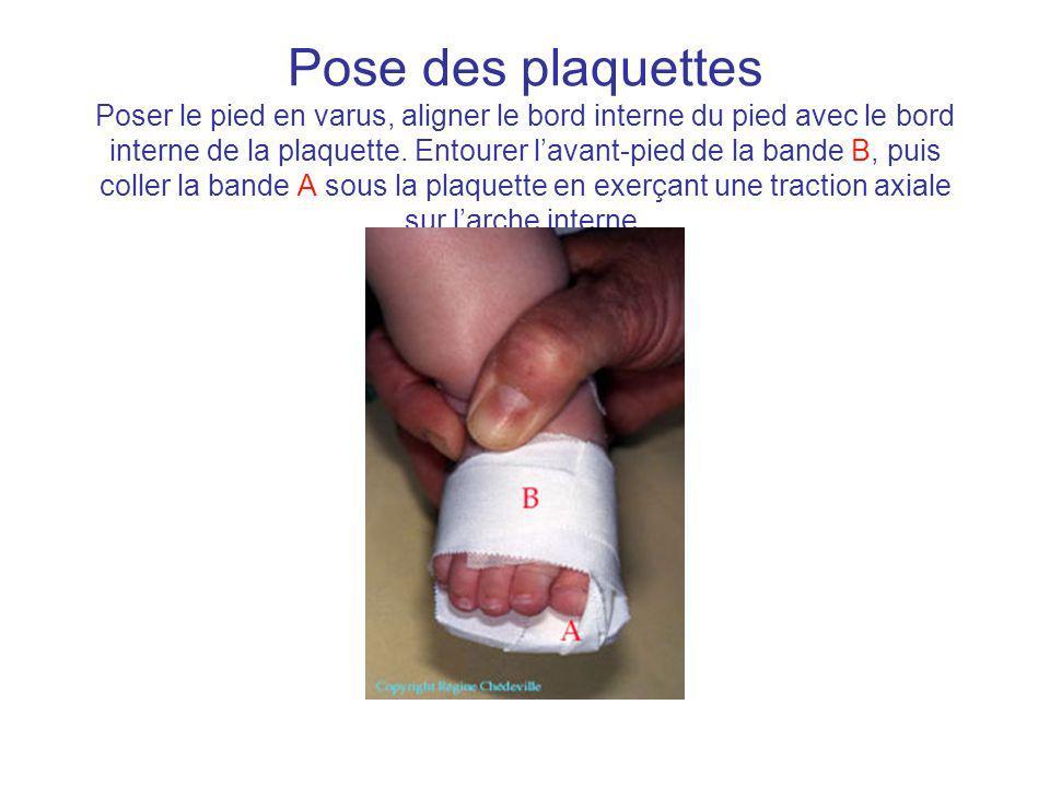 Pose des plaquettes Poser le pied en varus, aligner le bord interne du pied avec le bord interne de la plaquette.