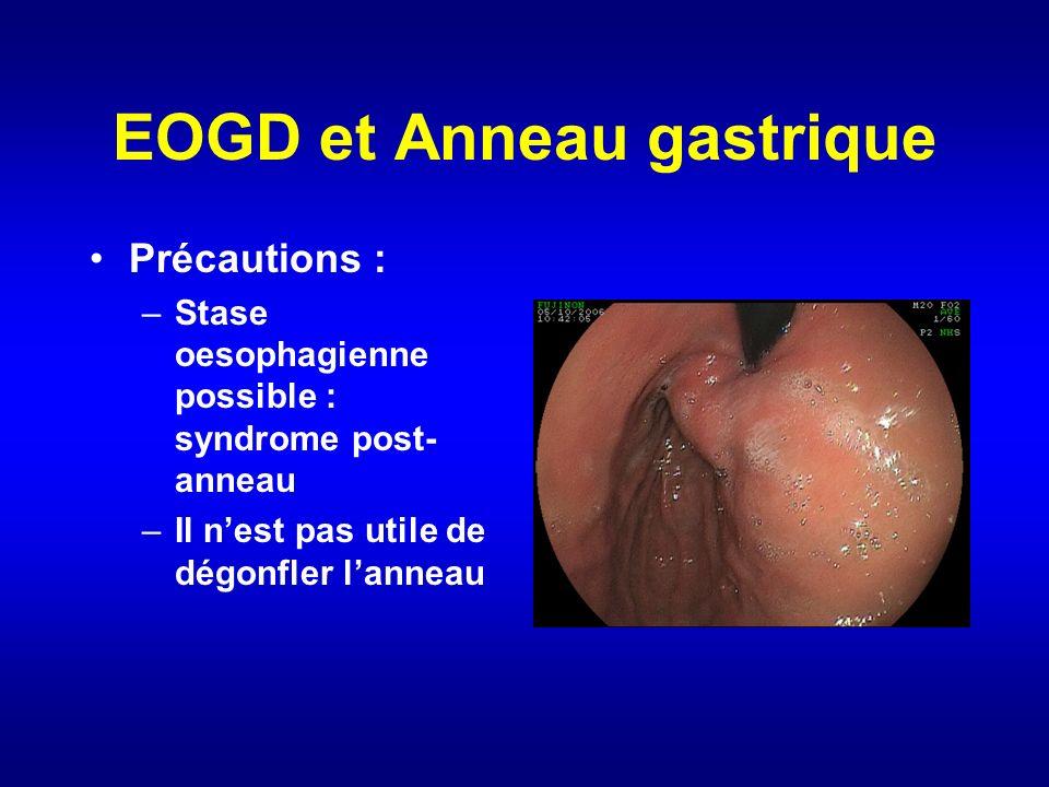 EOGD et Anneau gastrique