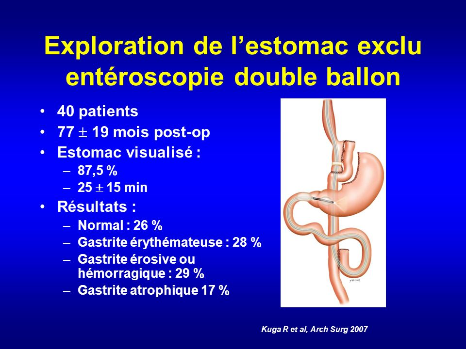 Exploration de l'estomac exclu entéroscopie double ballon