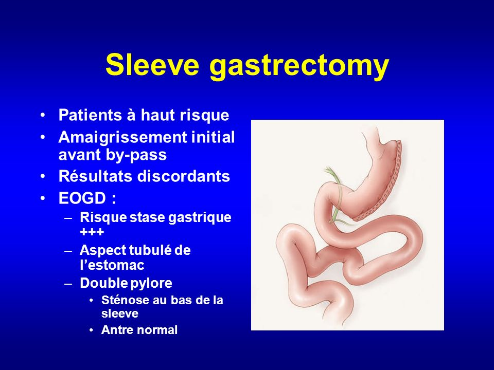 Sleeve gastrectomy Patients à haut risque