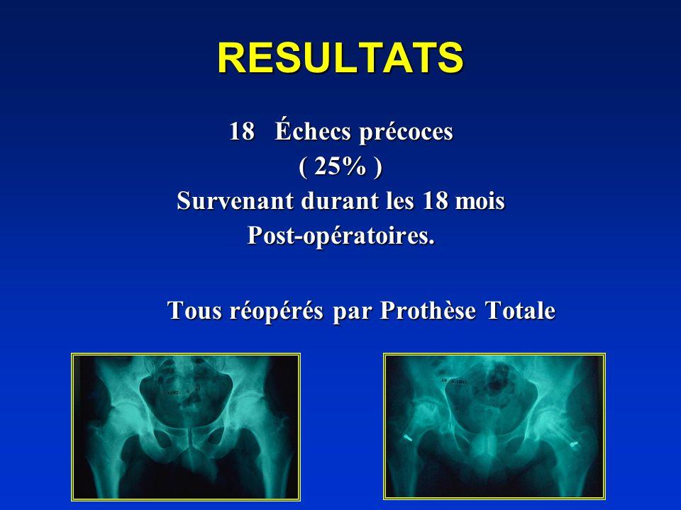 Survenant durant les 18 mois Tous réopérés par Prothèse Totale