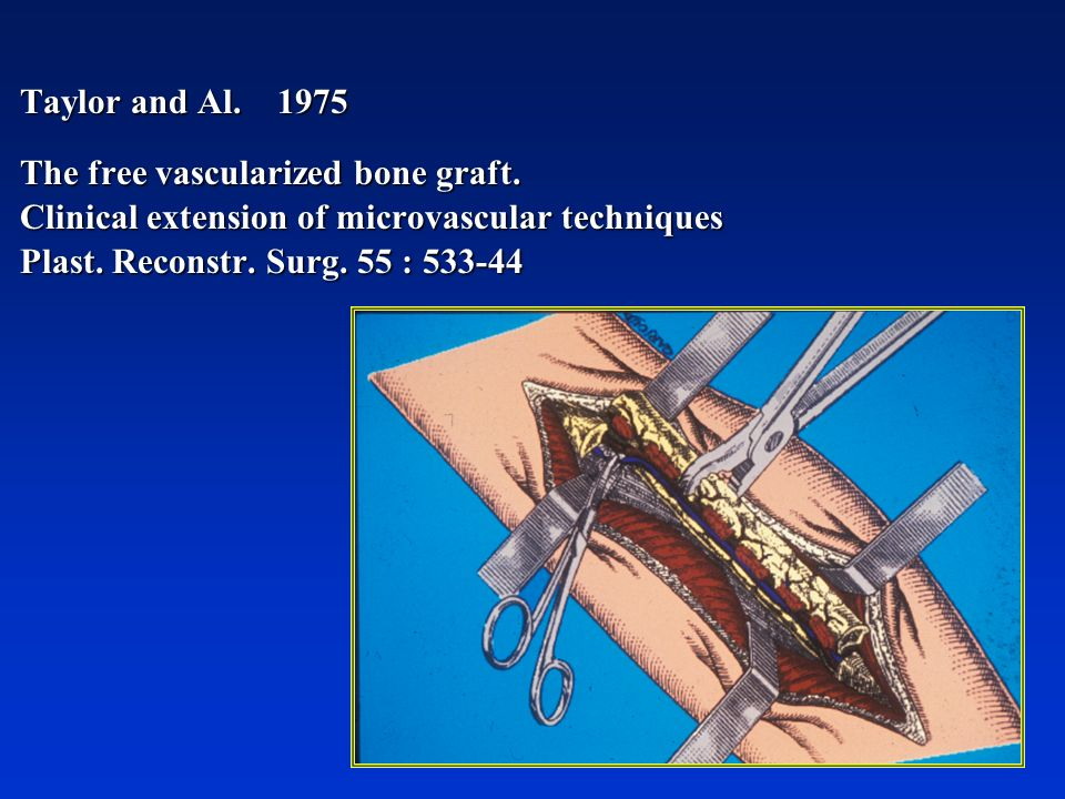 Taylor and Al. 1975 The free vascularized bone graft. Clinical extension of microvascular techniques.