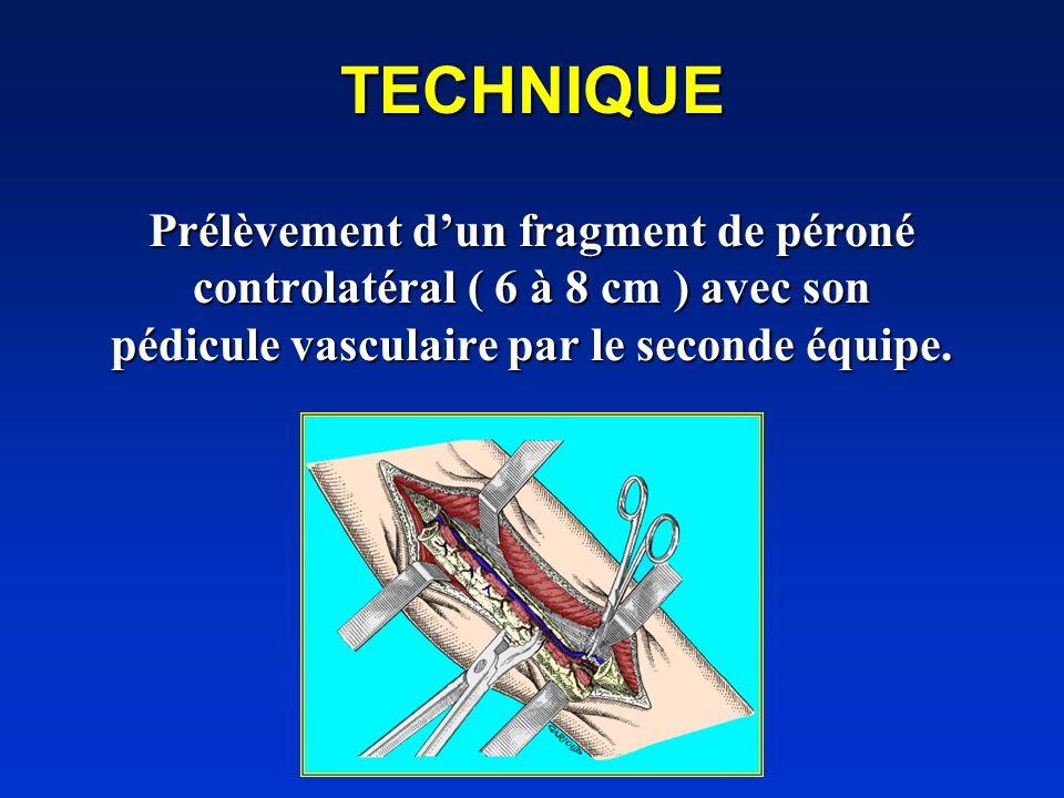 TECHNIQUE Prélèvement d'un fragment de péroné controlatéral ( 6 à 8 cm ) avec son pédicule vasculaire par le seconde équipe.