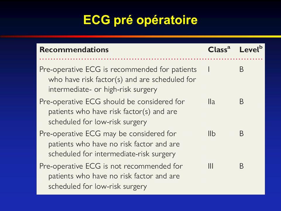 ECG pré opératoire