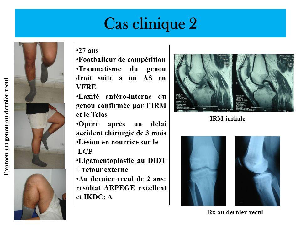 Examen du genou au dernier recul