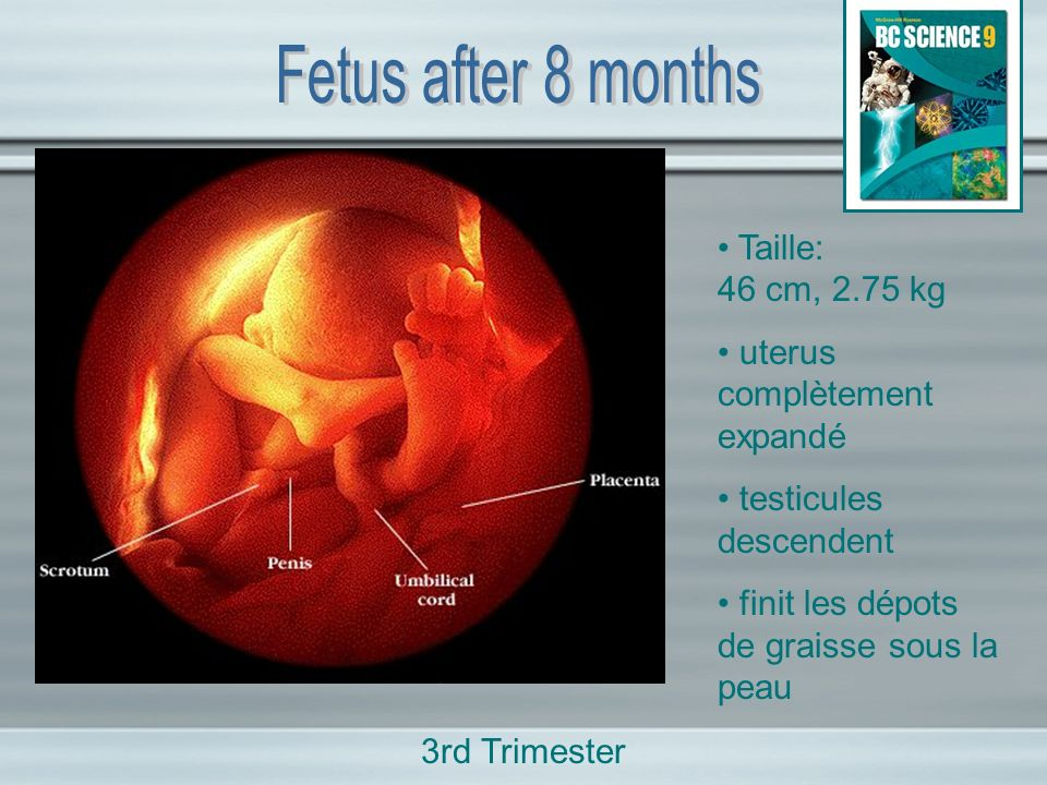 Fetus after 8 months • Taille: 46 cm, 2.75 kg