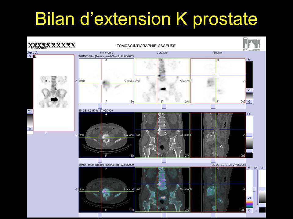 Bilan d'extension K prostate