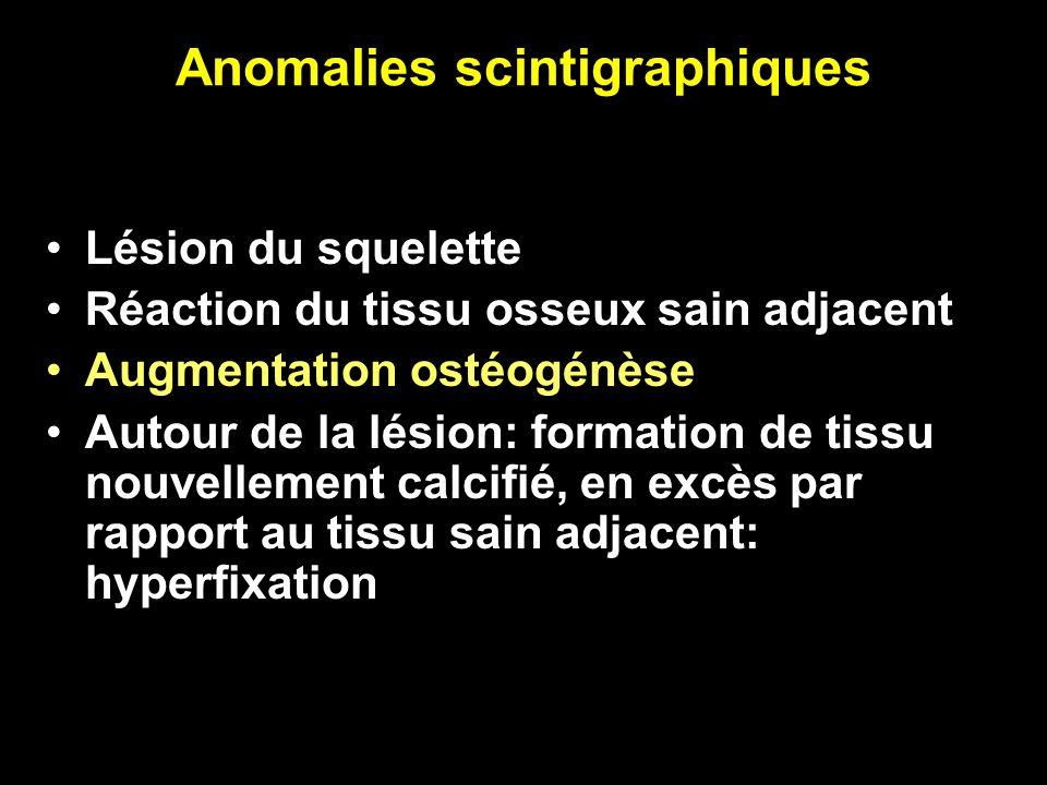Anomalies scintigraphiques