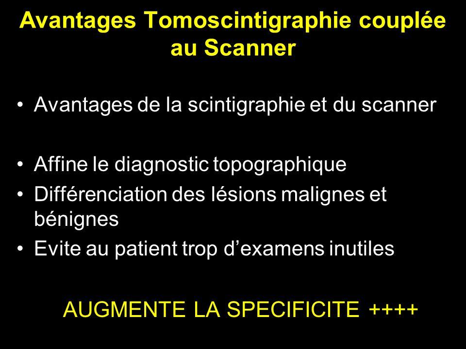 Avantages Tomoscintigraphie couplée au Scanner