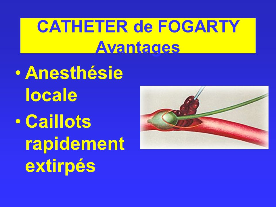 CATHETER de FOGARTY Avantages