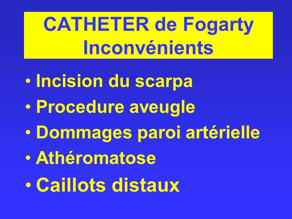 CATHETER de Fogarty Inconvénients