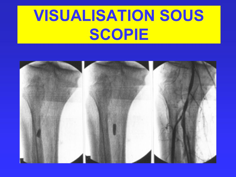 VISUALISATION SOUS SCOPIE