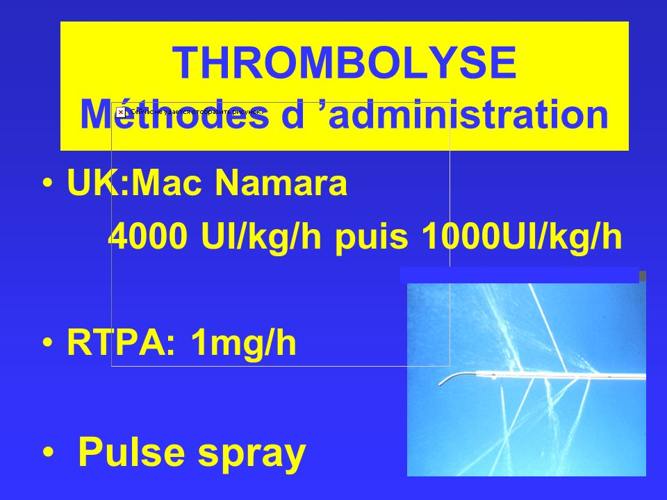 THROMBOLYSE Méthodes d 'administration