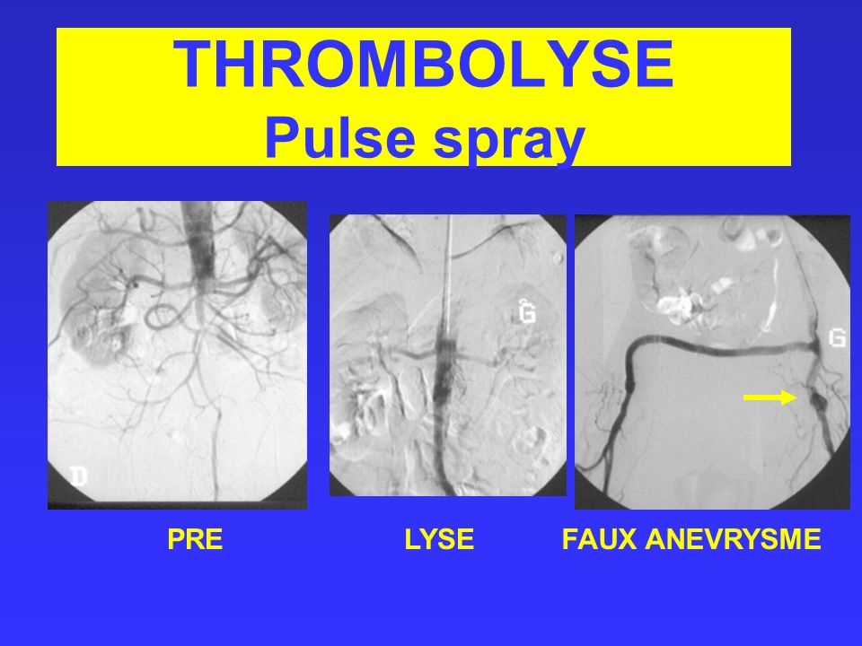 THROMBOLYSE Pulse spray