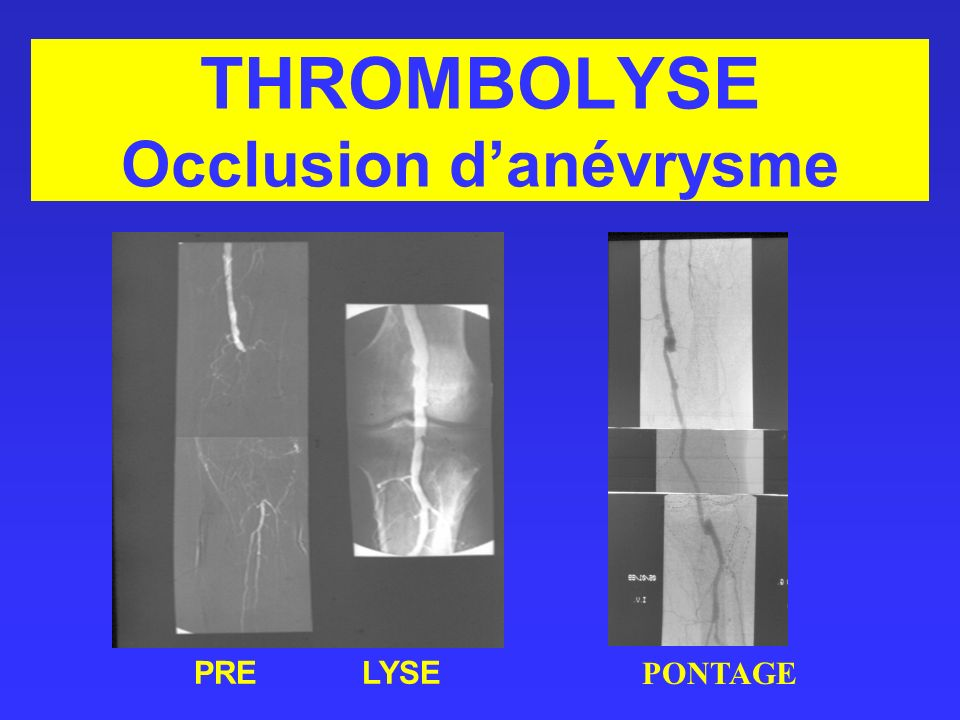 THROMBOLYSE Occlusion d'anévrysme