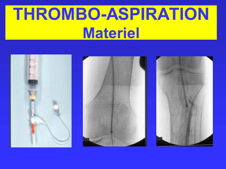 THROMBO-ASPIRATION Materiel
