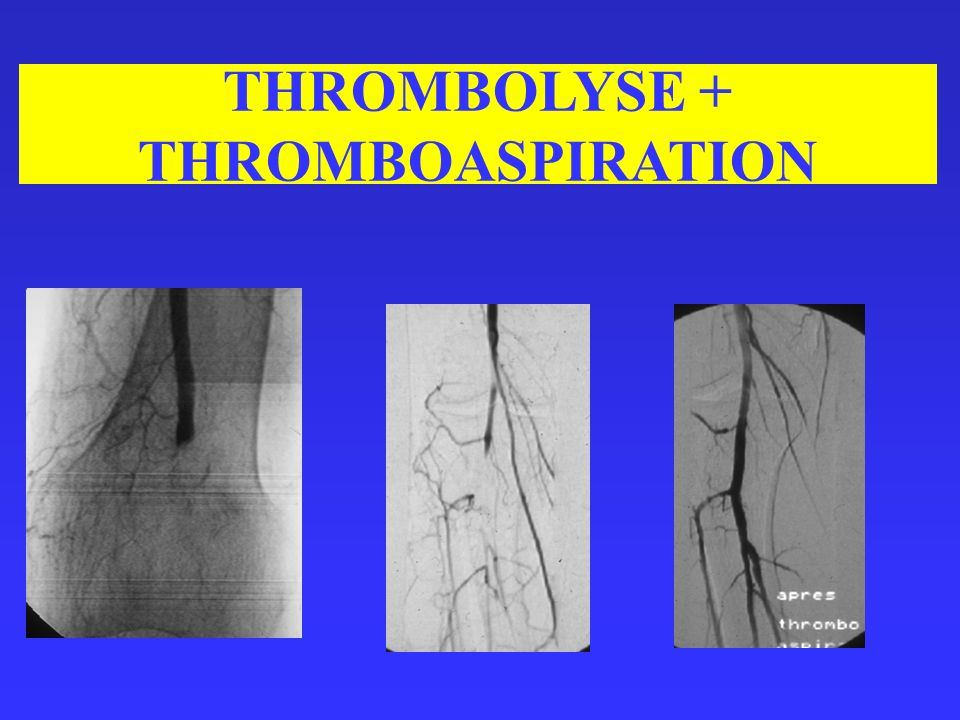 THROMBOLYSE + THROMBOASPIRATION