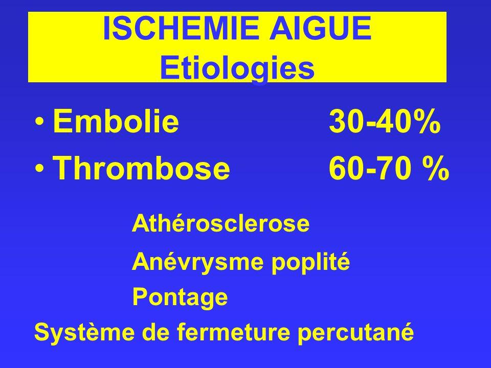 ISCHEMIE AIGUE Etiologies