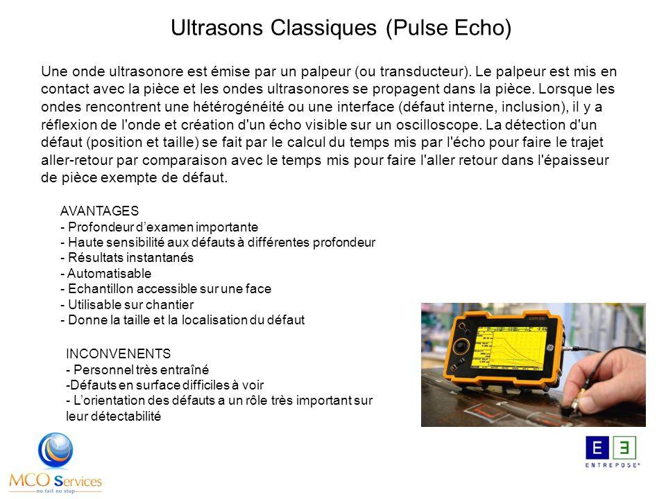Ultrasons Classiques (Pulse Echo)