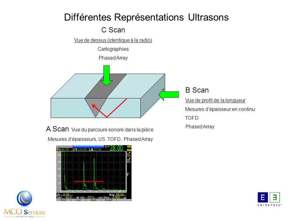 Différentes Représentations Ultrasons