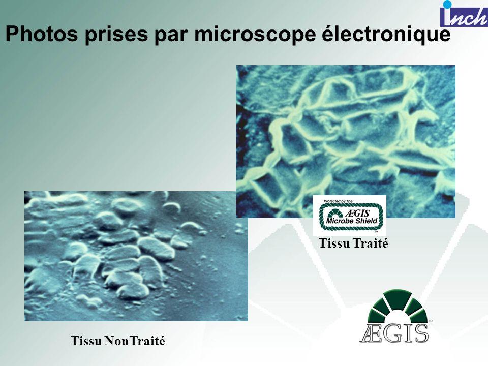 Photos prises par microscope électronique