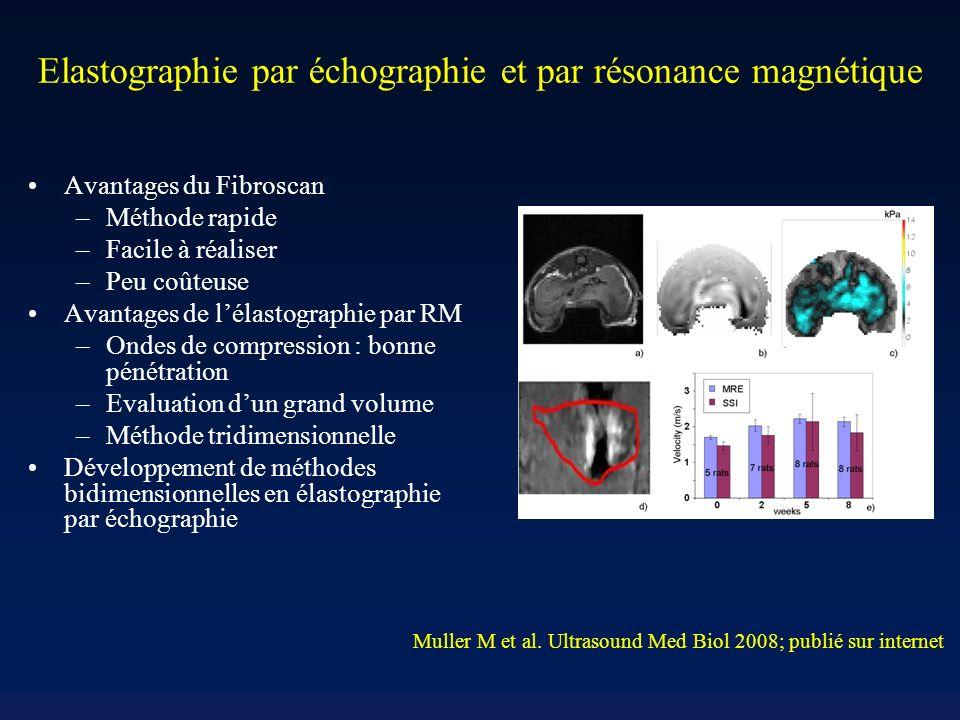 Elastographie par échographie et par résonance magnétique