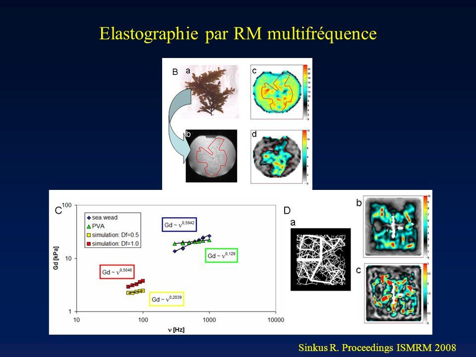 Elastographie par RM multifréquence