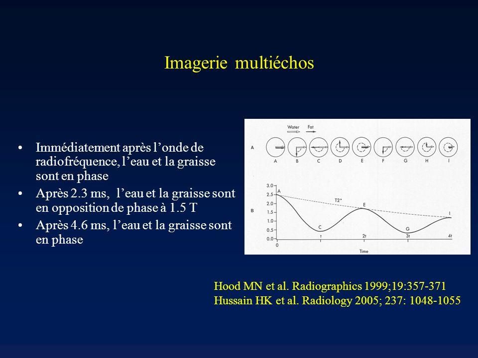 Imagerie multiéchos Immédiatement après l'onde de radiofréquence, l'eau et la graisse sont en phase.