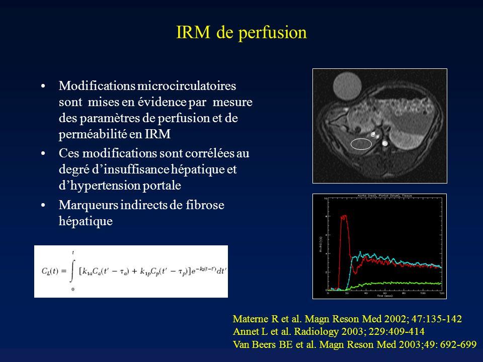 IRM de perfusion Modifications microcirculatoires sont mises en évidence par mesure des paramètres de perfusion et de perméabilité en IRM.