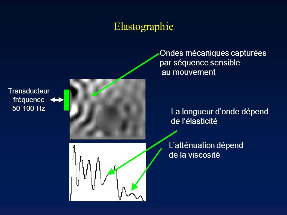 Elastographie Ondes mécaniques capturées par séquence sensible