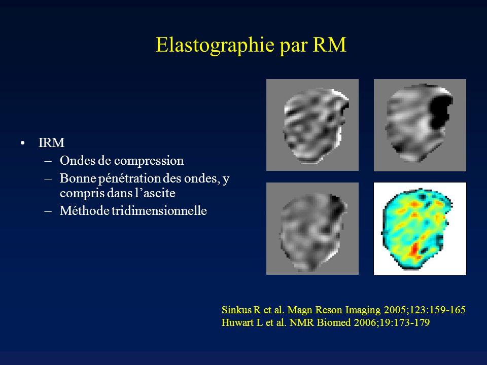 Elastographie par RM IRM Ondes de compression