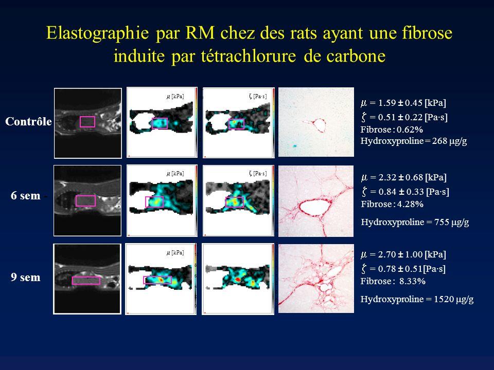 Elastographie par RM chez des rats ayant une fibrose induite par tétrachlorure de carbone