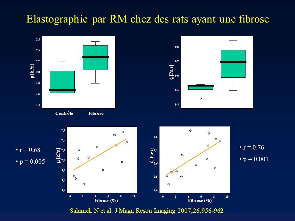 Elastographie par RM chez des rats ayant une fibrose