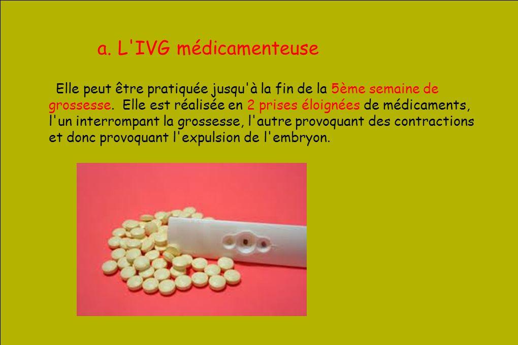 a. L IVG médicamenteuse