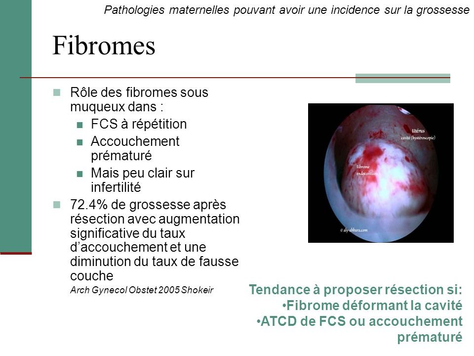Fibromes Rôle des fibromes sous muqueux dans : FCS à répétition