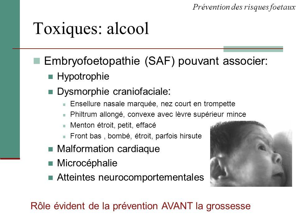 Toxiques: alcool Embryofoetopathie (SAF) pouvant associer: Hypotrophie
