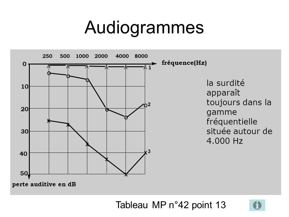 Audiogrammes Tableau MP n°42 point 13