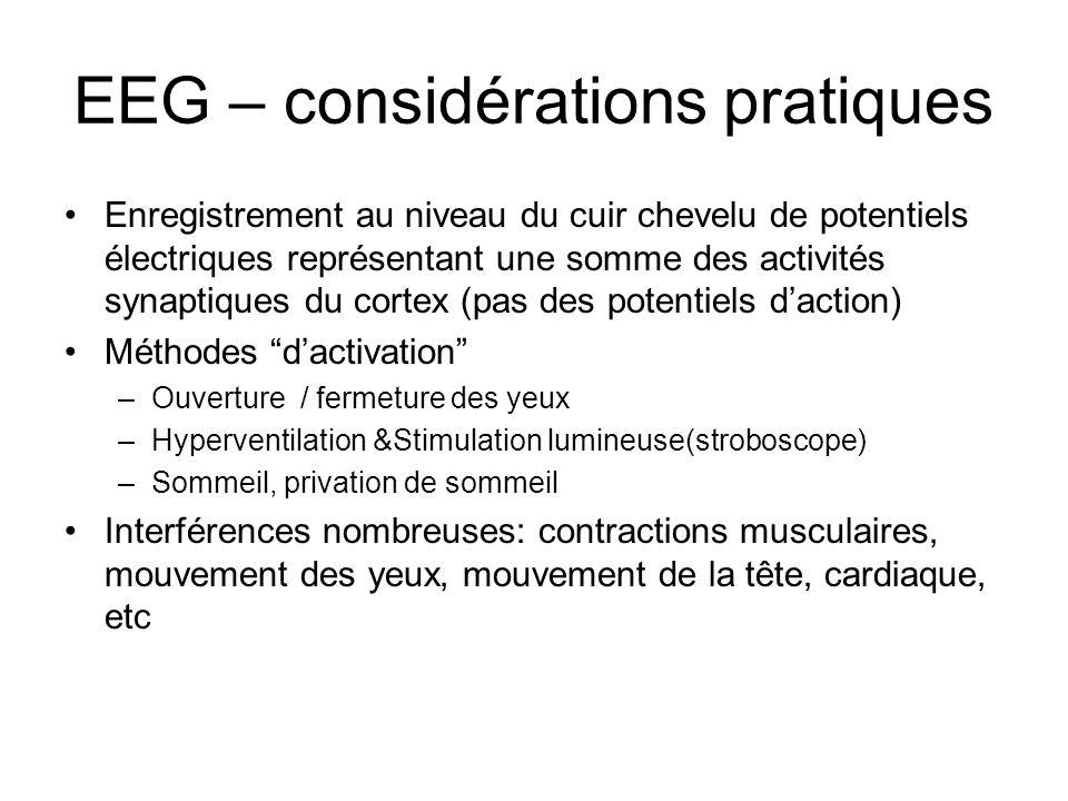 EEG – considérations pratiques