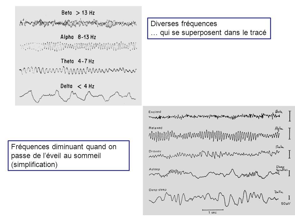 Diverses fréquences … qui se superposent dans le tracé.