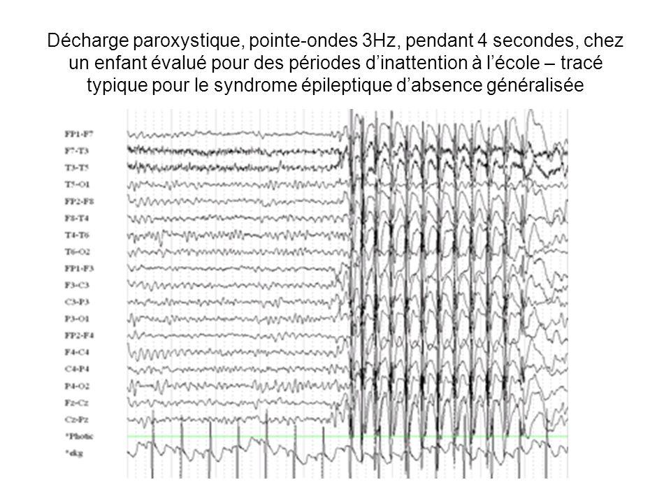 Décharge paroxystique, pointe-ondes 3Hz, pendant 4 secondes, chez un enfant évalué pour des périodes d'inattention à l'école – tracé typique pour le syndrome épileptique d'absence généralisée
