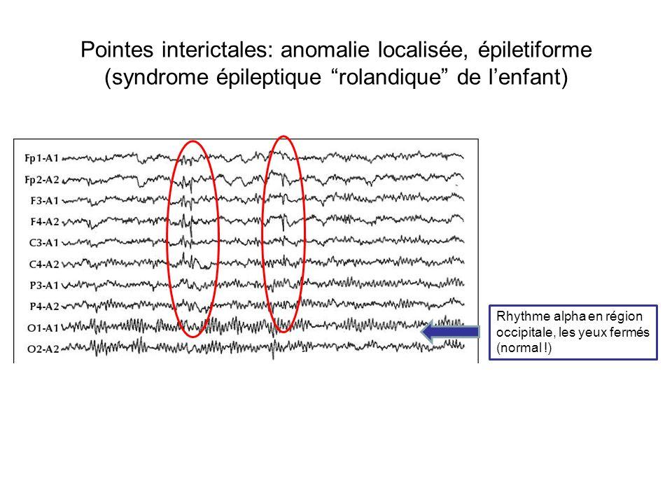 Pointes interictales: anomalie localisée, épiletiforme (syndrome épileptique rolandique de l'enfant)