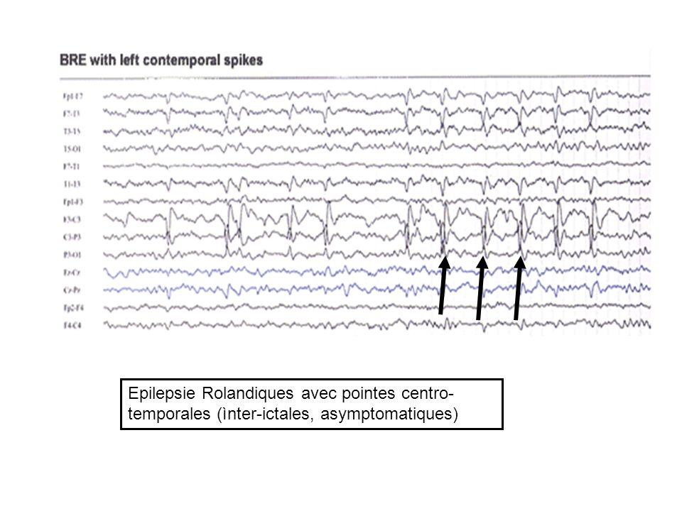 Epilepsie Rolandiques avec pointes centro-temporales (ìnter-ictales, asymptomatiques)