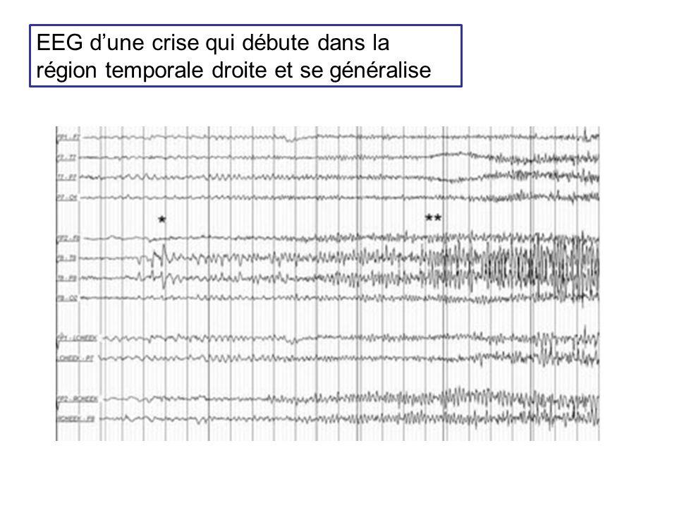 EEG d'une crise qui débute dans la région temporale droite et se généralise