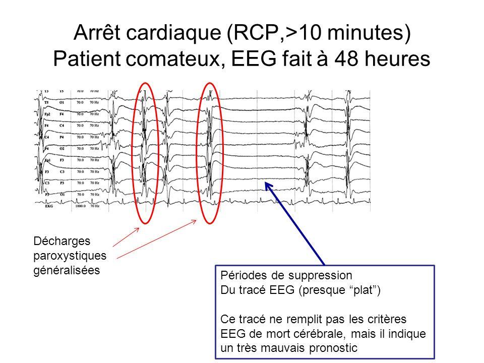 Arrêt cardiaque (RCP,>10 minutes) Patient comateux, EEG fait à 48 heures