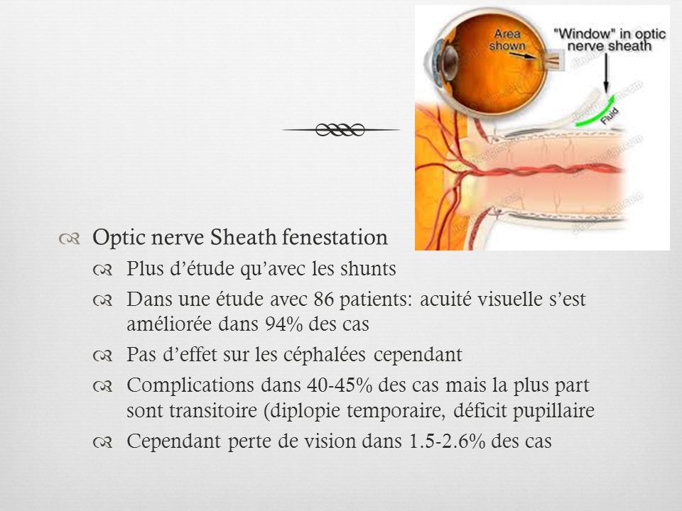 Optic nerve Sheath fenestation