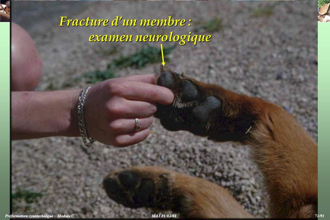Fracture d'un membre : examen neurologique