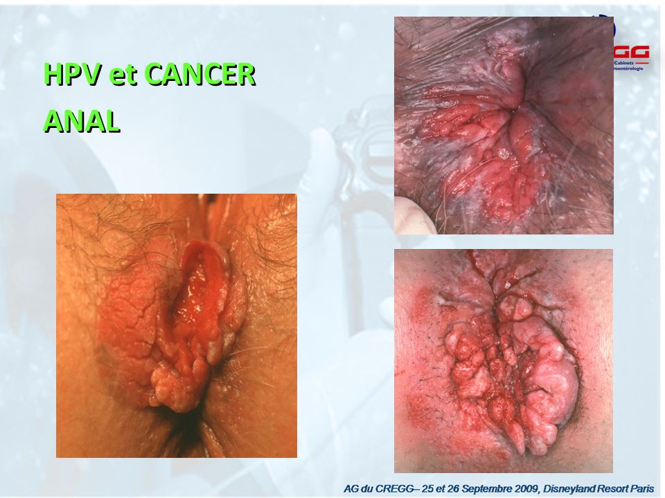 HPV et CANCER ANAL