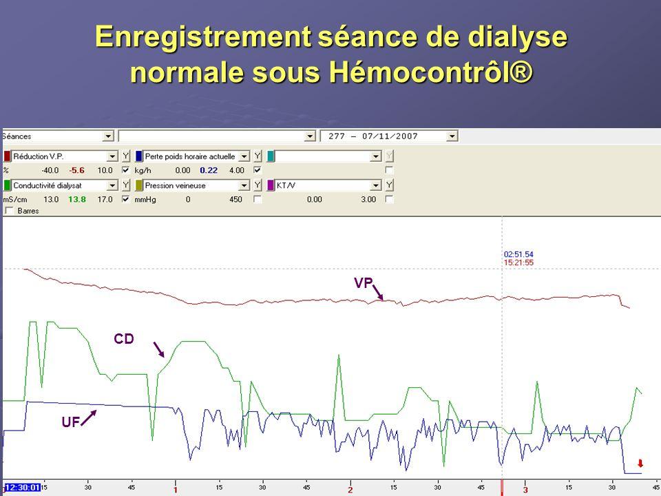 Enregistrement séance de dialyse normale sous Hémocontrôl®